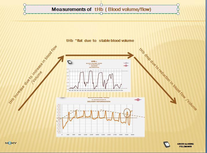 thb  trend. 5 1 5 examplejpg.jpg
