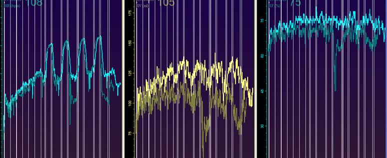 GK right EF comp 2 intervall.jpg