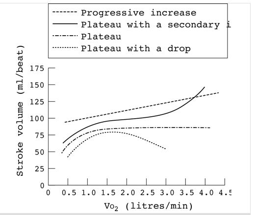 different   trends in sv in step test.jpg