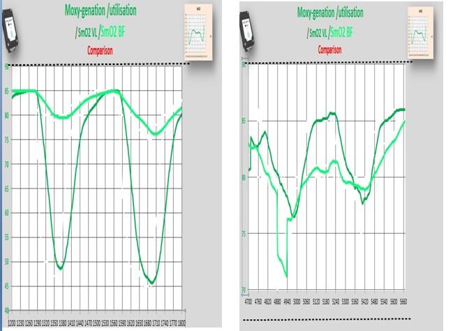 smo2  overlapp  start  and end.jpg