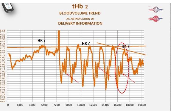 disc  tHb  all intervall.jpg