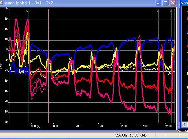 biased zero first stop  to see 2nd 200 watt.JPG