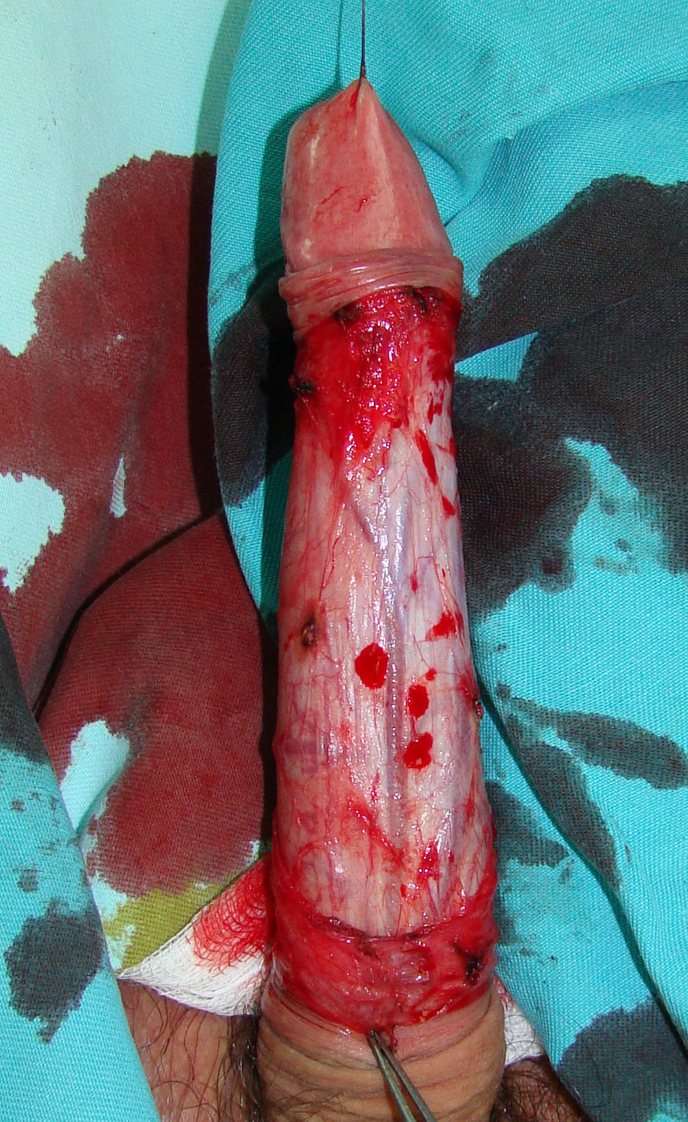 001 only right penile artery..JPG