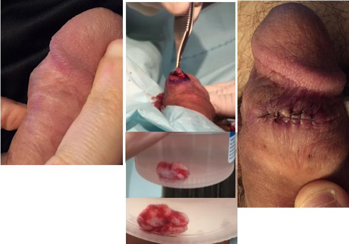 pmma foreign body granuloma penis avanti derma.JPG