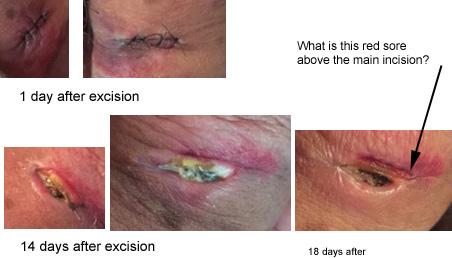 scar healing.jpg